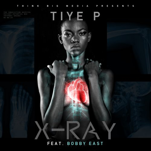 X-Ray (Ft Bobby East)